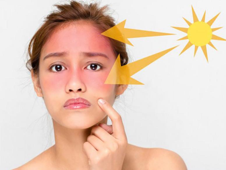Phân biệt hai loại tia dễ gây nhầm lẫn tia UVA và UVB
